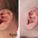 Infant Ear Molding