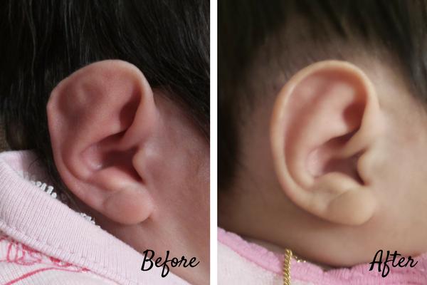ear molding